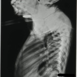 Tuberculosis of the Spine - HOSP-STAN-07-01-02-1662-22